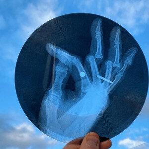 Tony Hawke X-Ray